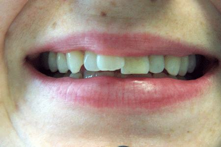 before-and-after-veneers-100_1967