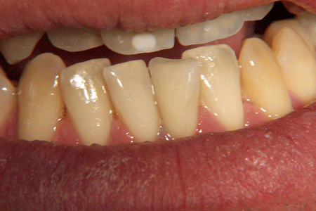 before-and-after-veneers-1b