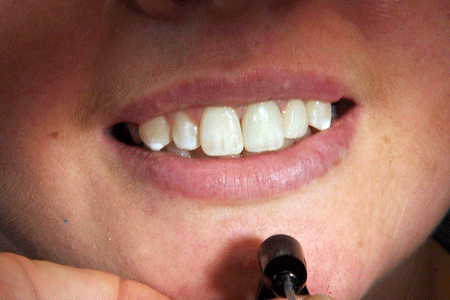 before-and-after-veneers-2b