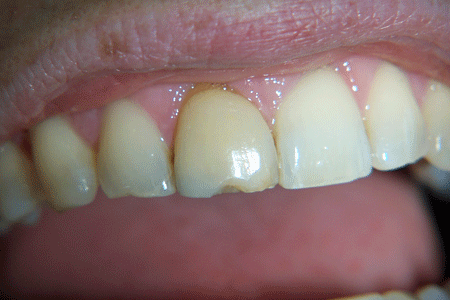 before-and-after-veneers-3a