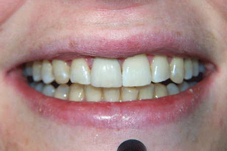 before-and-after-veneers-3b